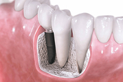 Fill The Gaps in Your Smile with Dental Crowns & Bridges