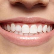 Best teeth whitening Services in calgary